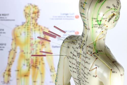 Akupunktur_mit Nadeln_500_333